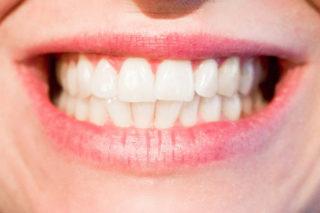 Diş Beyazlatma Yöntemleri, Evdeki Malzemelerle Doğal Çözümler Tarifi
