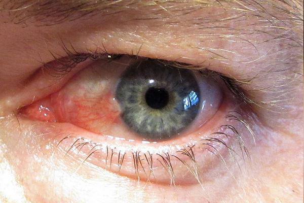 göz kanlanması