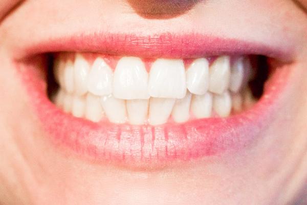 karbonatla diş beyazlatma