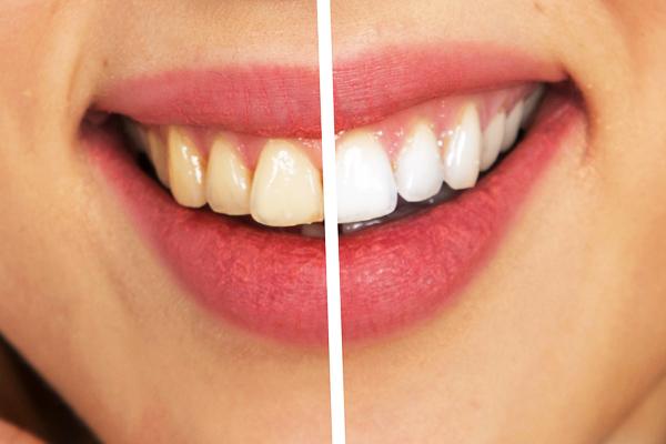 üzüm sirkesi diş beyazlatma