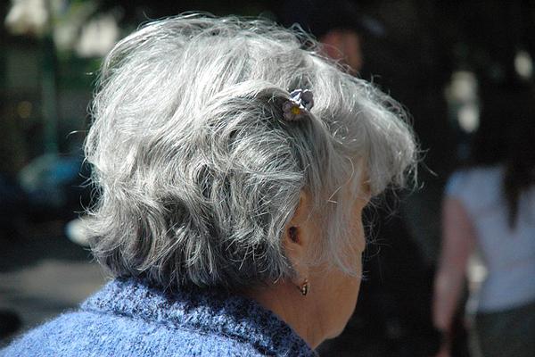saç beyazlamasına ne iyi gelir