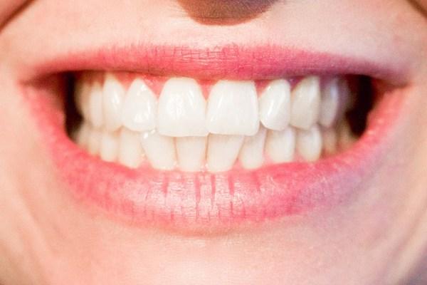 kabartma tozu ile diş beyazlatma