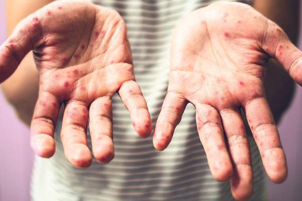 el ayak hastalığı karbonat