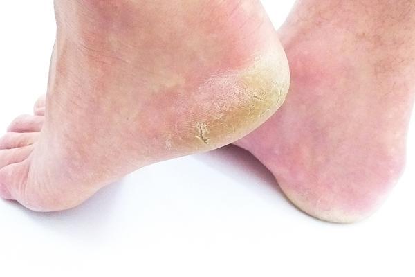 ayak mantarı nasıl geçer