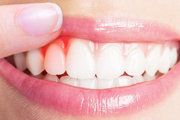 diş eti çekilmesine ne iyi gelir