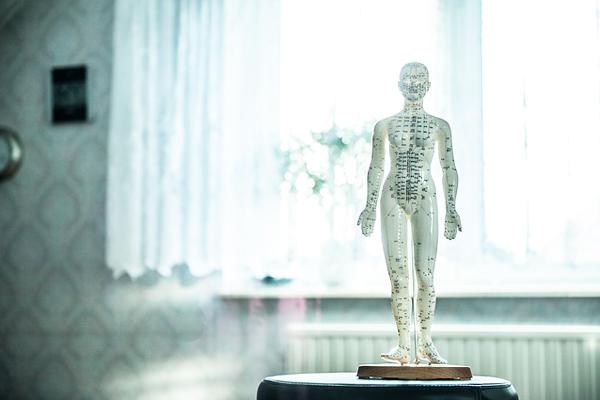 akupunktur zayıflama