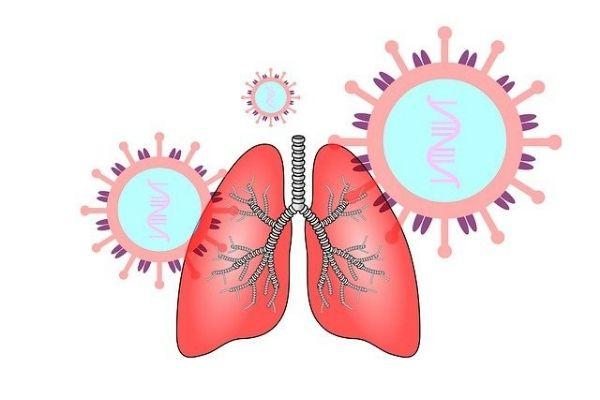 bronşektazi tedavisi