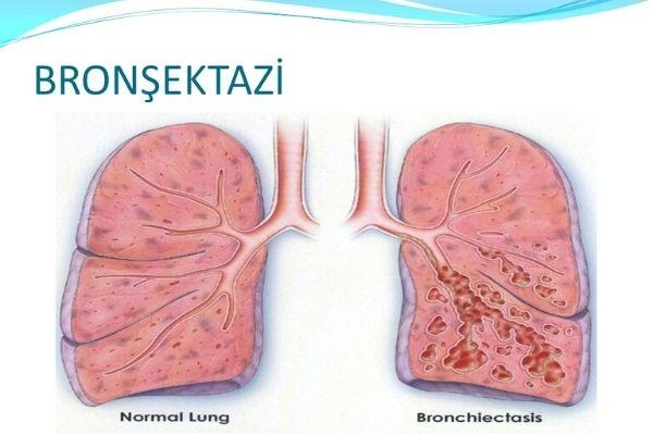 bronşektazi nedir
